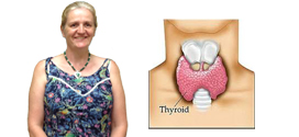 Thyroid Case Study - Robyn Nelson