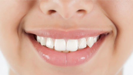 Your Pearly Whites and Heart Disease are Correlated!