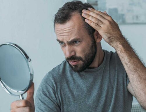 Hormone Issues Behind Hair Loss