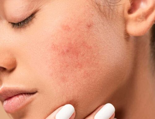 How To Deal With Acne Vulgaris